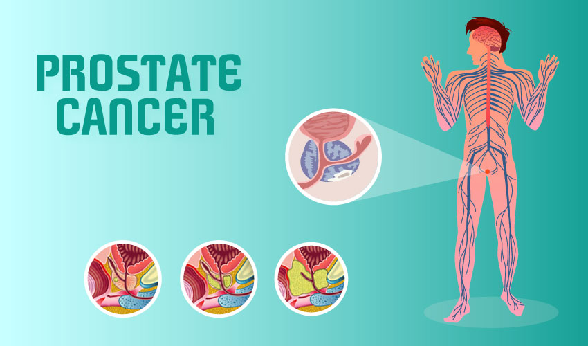 Basics of Prostate Cancer with Symptoms and Prevention